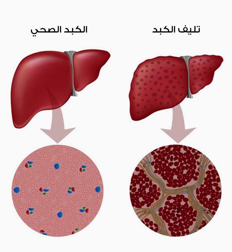 """5 أعراض تشير إلى إصابتك بـ""""الكبد الوبائي"""""""